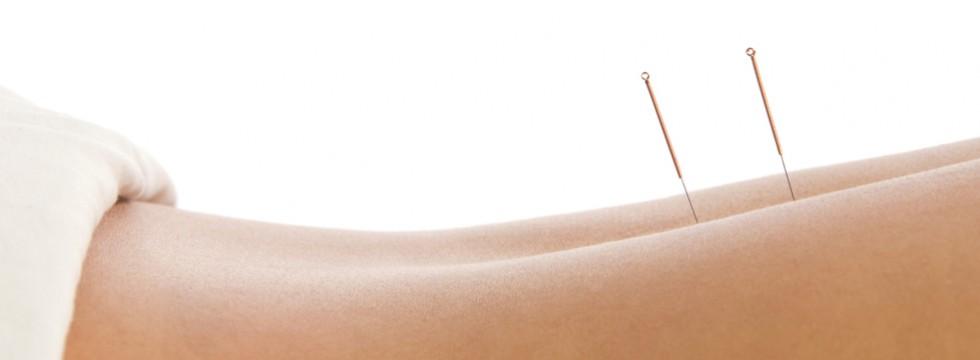 Brook West Acupuncture